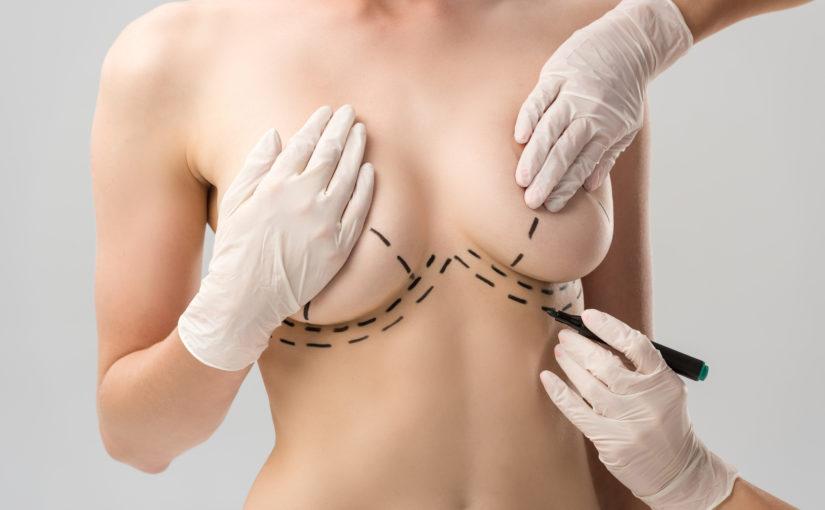 Mamoplastia com prótese: tudo que você precisa saber